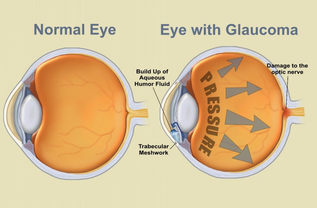 glaucoma and CBD