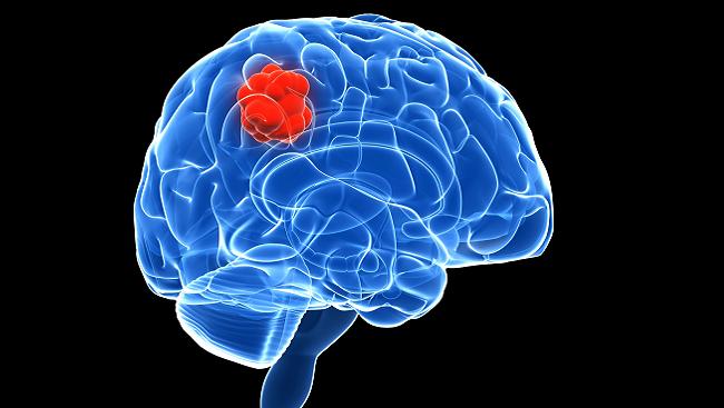 brain_cancer