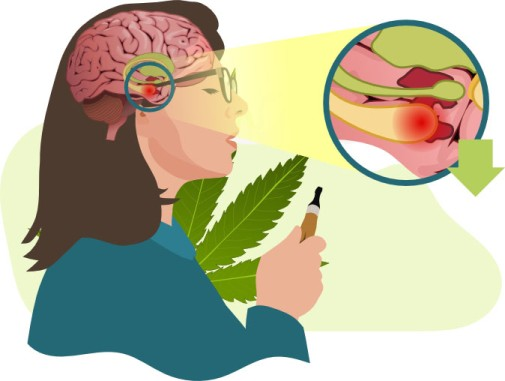 Physical changes in the brain caused by long-term marijuana use